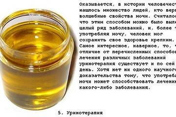 top_10_samogo_strannogo_lechenija_10_foto_6.jpg