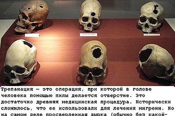 top_10_samogo_strannogo_lechenija_10_foto_9.jpg